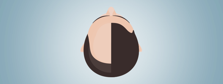 Hair transplant: 5 myths you need to know