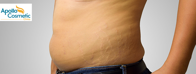Home Remedies for Stretch Mark Removal