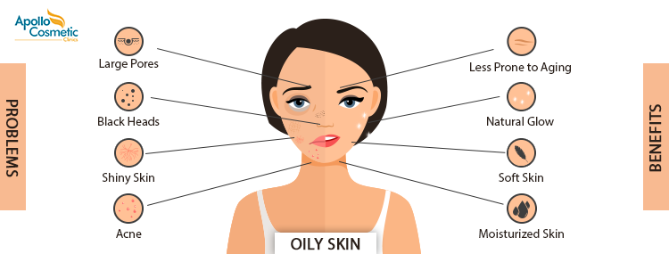 Top skin care tips for Manage oily skin.