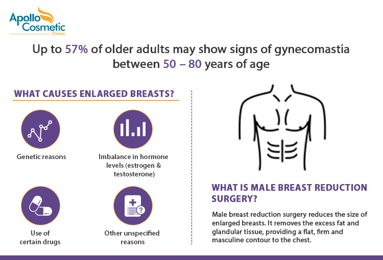 Know more about causes of gynecomastia and what is male breast reduction surgery.