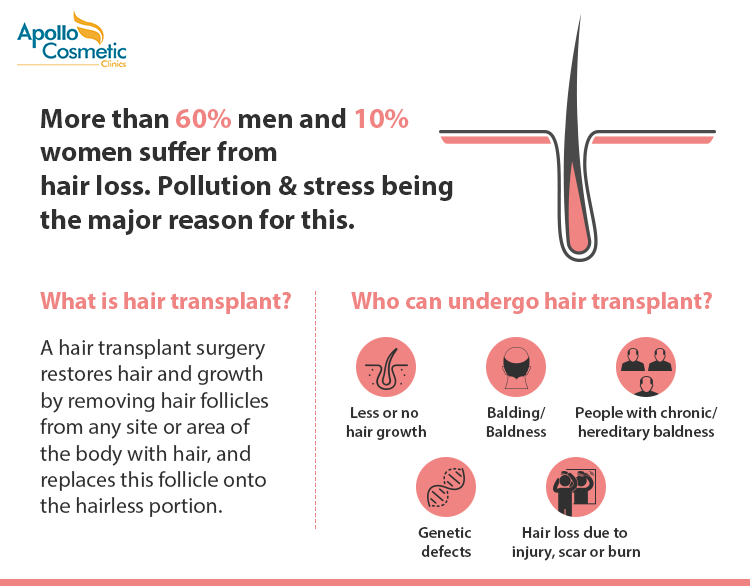 Know more about hair transplant treatment in chennai.