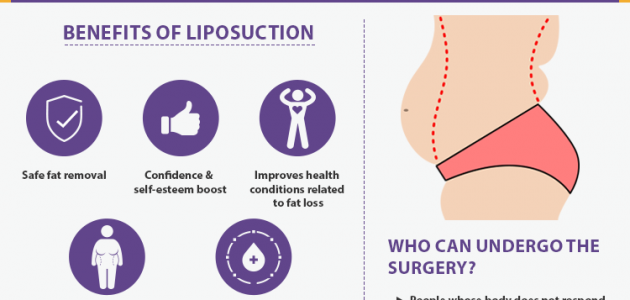 Describing liposuction surgery procedure And it benefits. Eligibility for liposuction surgery.
