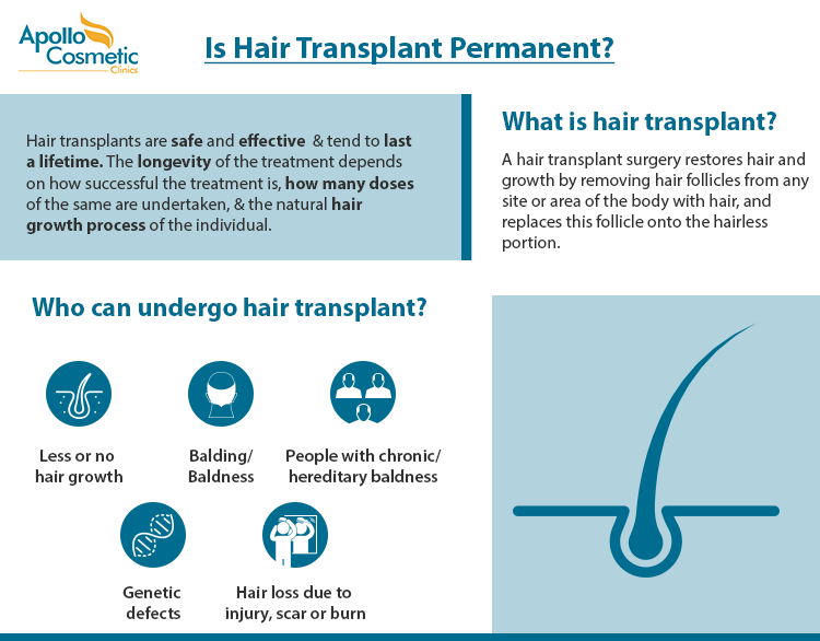 Hair Transplant – Does the surgery last a lifetime?