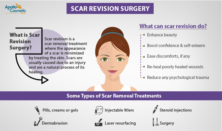 Is Scar Revision Surgery Right For You?