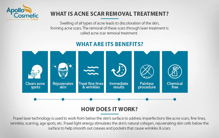 what is acne scar removal treatment - How it works and its benefits