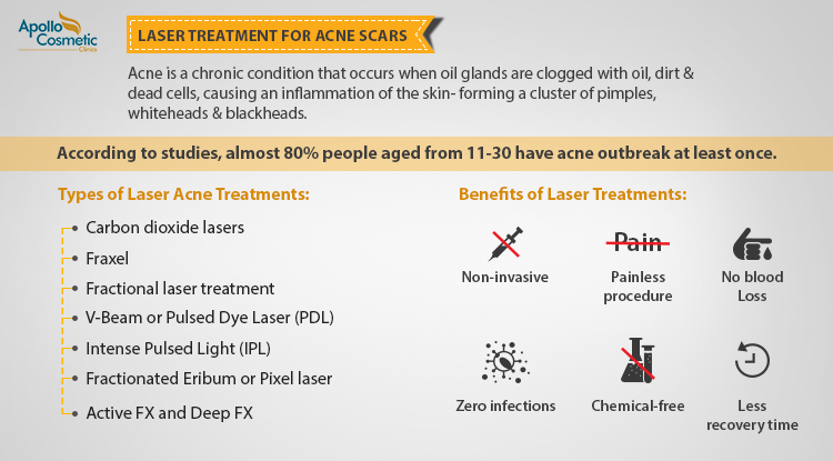 7 Types of Acne Scar Laser Treatments & Their Benefits
