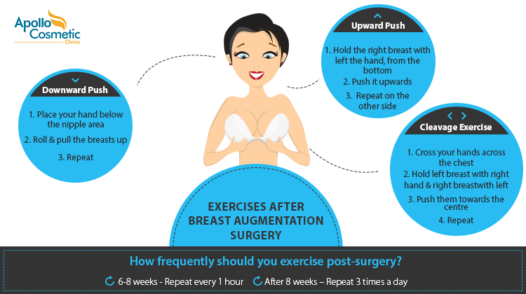 Best exercises after breast augmentation surgery.