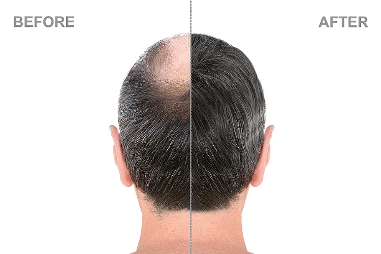 What are the benefits of Hair Transplant?