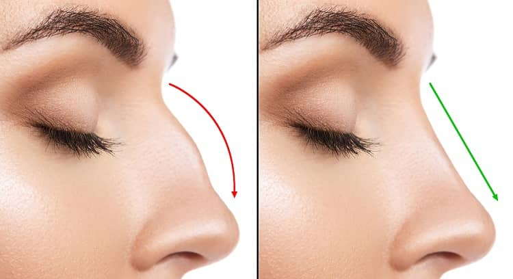 How Rhinoplasty (nose job) works?